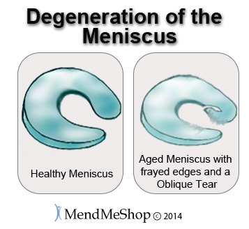 lateral meniscus degeneration