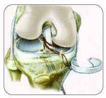 A meniscus may be replaced with an allograft or collagen implant