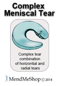 Complex tear posterior horn meniscal tear